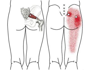 las zonas de color más intenso son los puntos gatillo en el piriforme, que irradian el dolor hacia los isquiotibiales, que aparecen en rojo más claro
