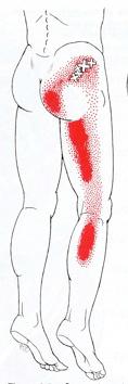 puntos gatillo en el piriforme que irradian dolor hacia los grupos musculares de la pierna